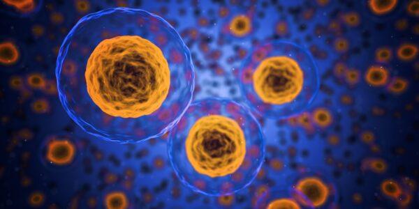 Ejemplos de hipertrofia celular